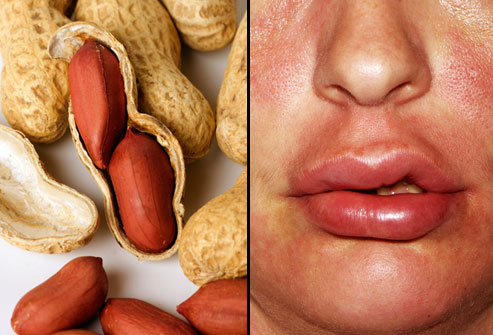 webmd_rm_photo_of_peanut_allergy