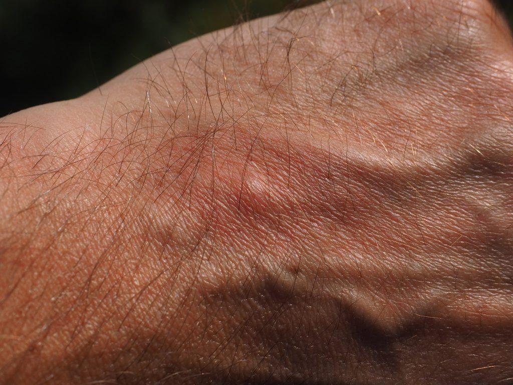 alergijska reakcija na ubod insekata