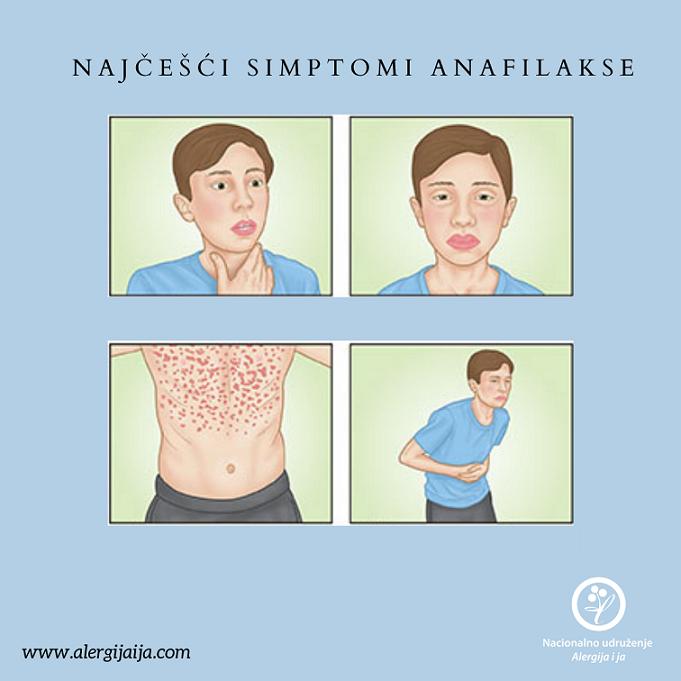 simptomi anafilakse
